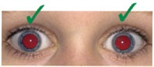 A child's eyes showing normal red reflex