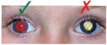 A child's eyes showing abnormal red reflex